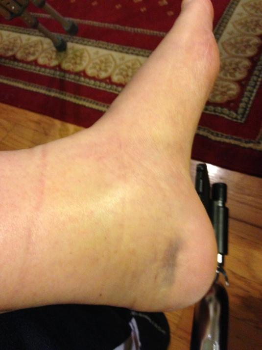 broken foot